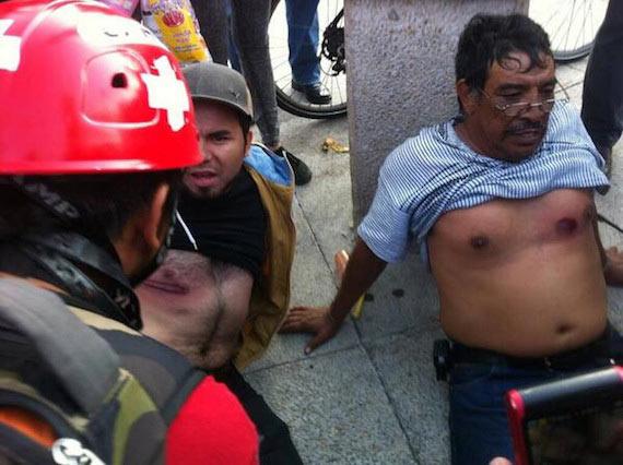 Foto difundida esta tarde en redes sociales por Anonymous. Sería de dos heridos por balas de goma