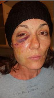 Imagen que facilitó la abogada de la mujer detenida, Torreya L. Hamilton, donde aparece Cassandra Feuerstein tras su cirugía por las heridas. Foto: Especial