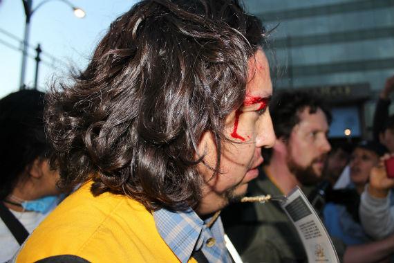 Defensor del Centro Proh herido. Foto: Estefanía Camacho, SinEmbargo
