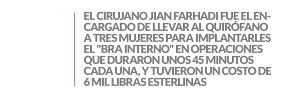 ENTRESACADO_BRA_02