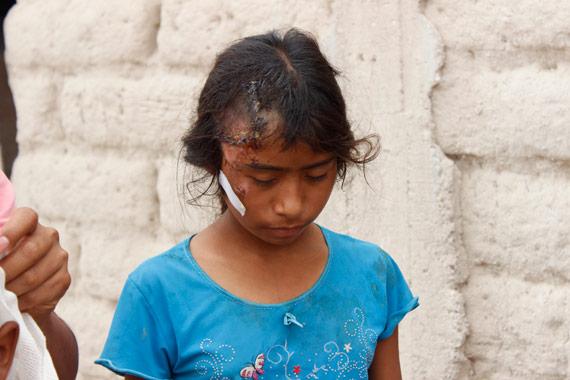 Ninos Indigenas Se Accidentan En Mexico Descubren Que Eran