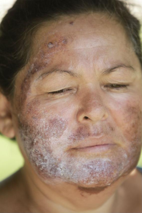 Luz Mercedes Acosta, habitante de la zona, quien fue afectada al lavarse la cara con agua del río Sonora sin saber que estaba contaminada con ácidos y metales pesados. Foto: Cuartoscuro