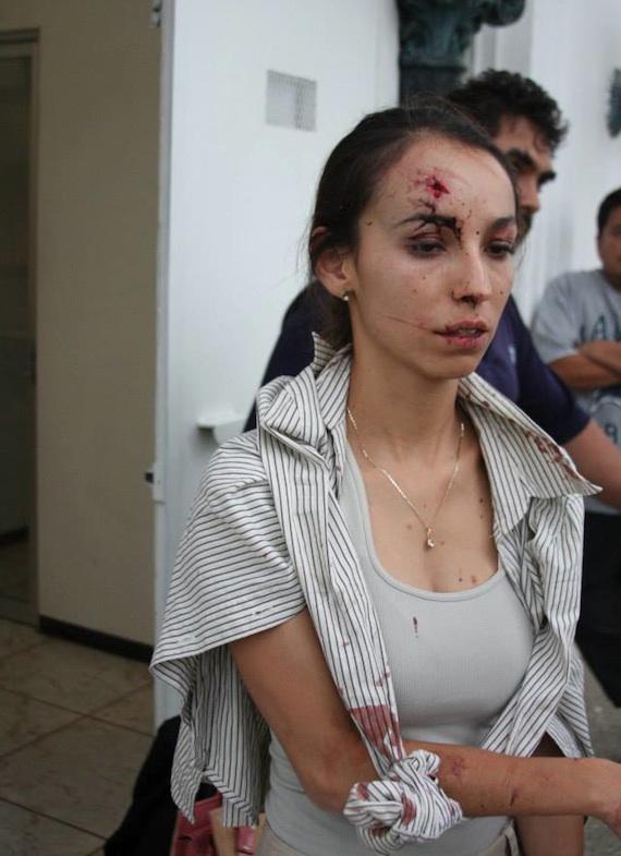 Karla Silva fue atacada por un hombre, quien acudió a buscarla en compañía de otros dos sujetos a la redacción del diario. Foto:  Facebook Miguel Ramirez