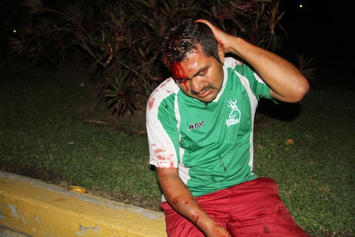 El día de ayer, elementos de la Policía Federal desalojaron y se enfrentaron a profesores. Foto: Cuartoscuro.