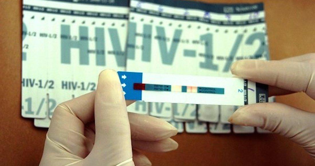 El contagio de VIH en adolescentes podrá aumentar un 60%: Unicef