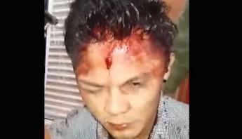 Un ladrón fue golpeado y entregado a las policía después de que intentó robar a los comensales en una taquería en la colonia Ciudad Azteca, Ecatepec de Morelos, Estado de México. Foto: Captura de pantalla