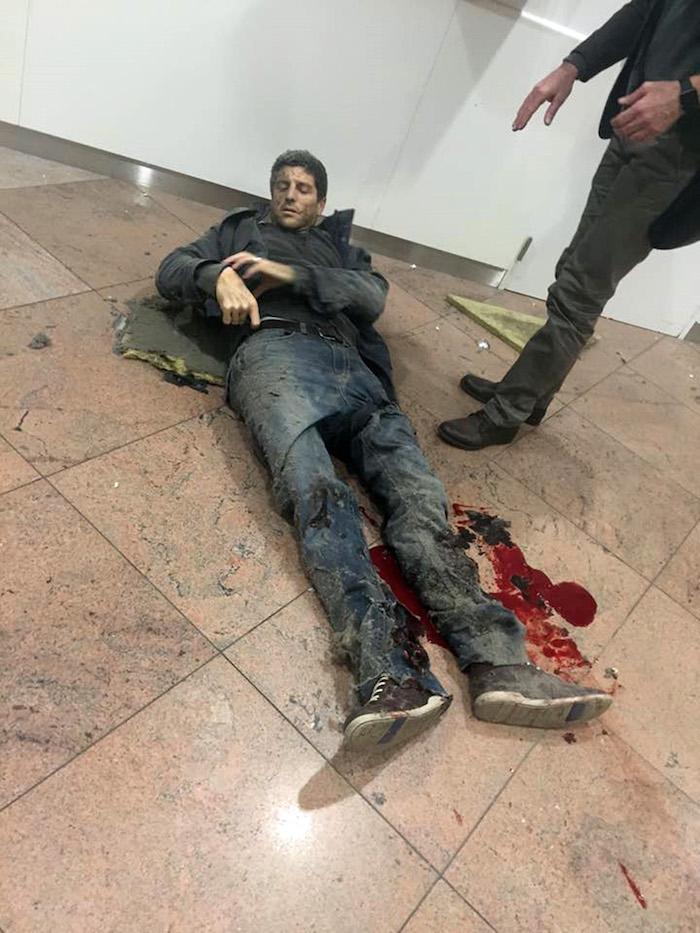 En esta imagen proporcionada por la televisora pública de Georgia y tomada por Ketevan Kardava, un hombre herido en el aeropuerto de Brusela. Foto: AP.