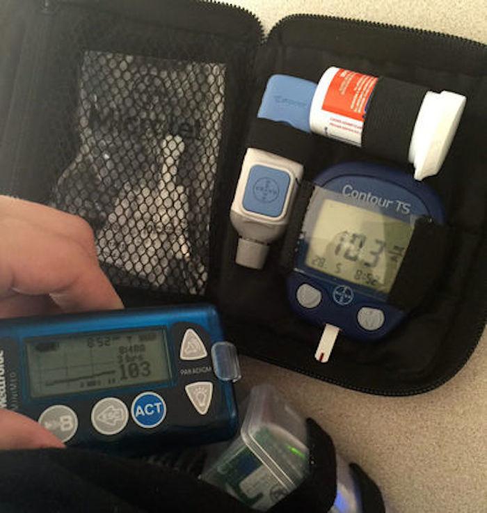 Gustavo carga las 24 horas del día con su invento, un páncreas artificial que controla sus niveles de glucosa. Foto: Gustavo Muñoz