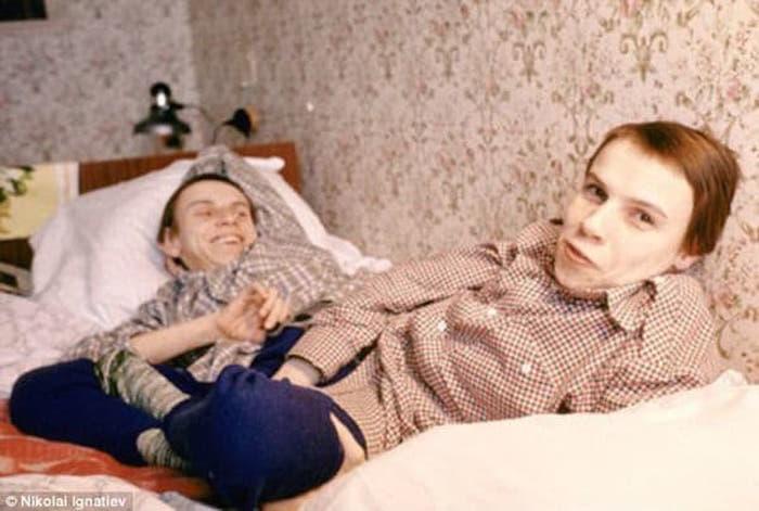 La cruda historia de las gemelas siamesas Krivoshlyopova