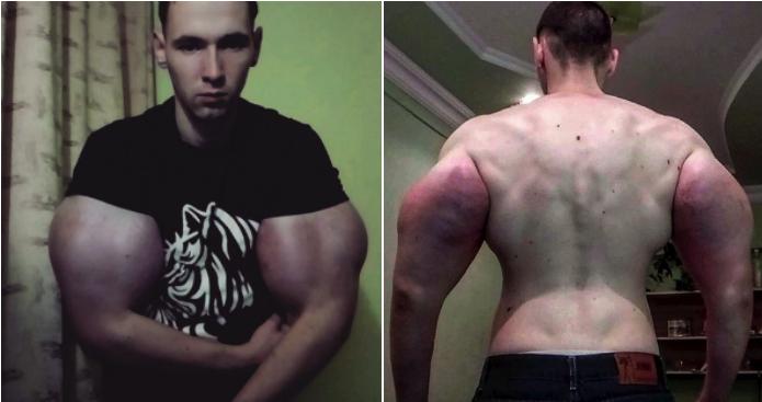 'Popeye': El fisicoculturista ruso que se inyecta aceite en los brazos