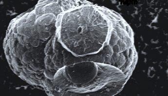 Microscopic_death_star